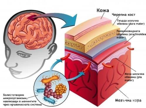 Инфекции на централна нервна система - изображение