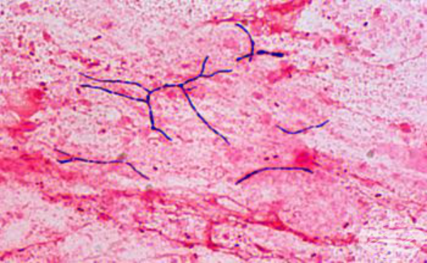 Нокардия (Nocardia) - изображение