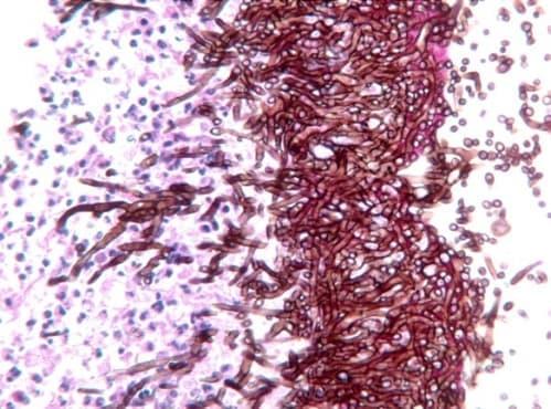 Причинители на опортюнистични инфекции - изображение
