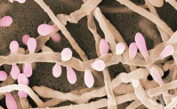Трихофитон (Trichophyton) - изображение
