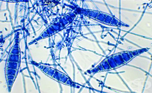 Микроспора (Microsporum) - изображение