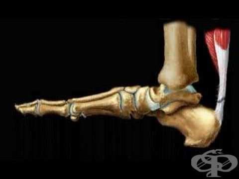 Травма на Ахилесовото сухожилие МКБ S86.0 - изображение