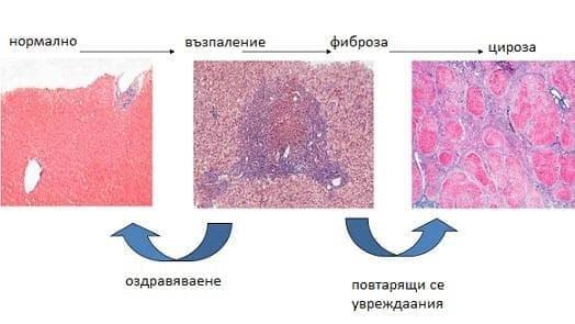 Чернодробна фиброза с чернодробна склероза МКБ K74.2 - изображение