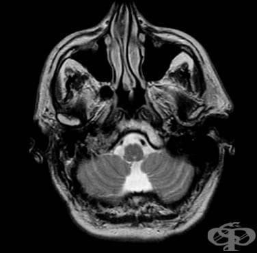 Аортно телце и други параганглии МКБ C75.5 - изображение