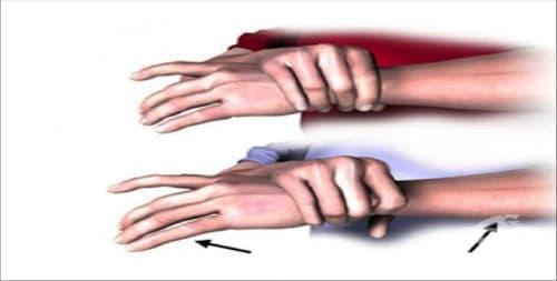 Синдром на Marfan МКБ Q87.4 - изображение