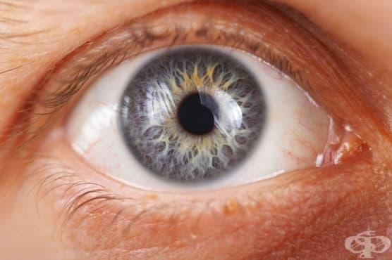 Глаукома МКБ H40 - изображение