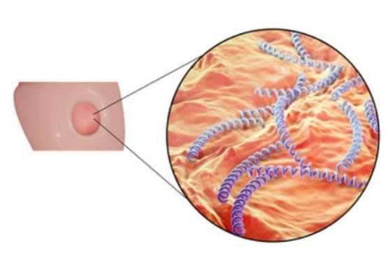 Ранен сифилис МКБ A51 - изображение