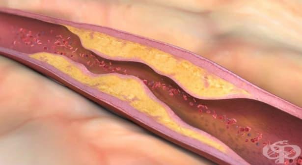 Атеросклероза МКБ I70 - изображение