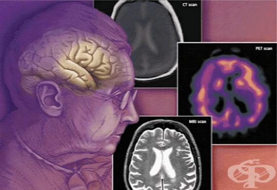 Деменция, неуточнена МКБ F03 - изображение