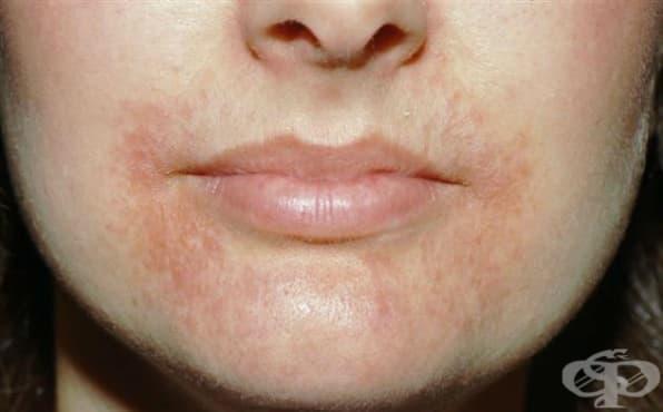 Периорален дерматит МКБ L71.0 - изображение