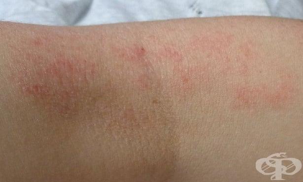 Атопичен дерматит МКБ L20 - изображение