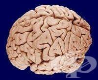 Последици от мозъчно съдова болест МКБ I69 - изображение