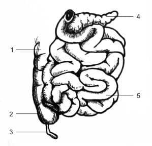 Паралитичен илеус и непроходимост на червата без херния МКБ K56 - изображение