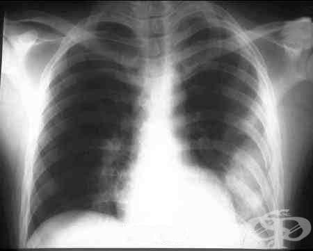 Травматичен хемоторакс МКБ S27.1 - изображение