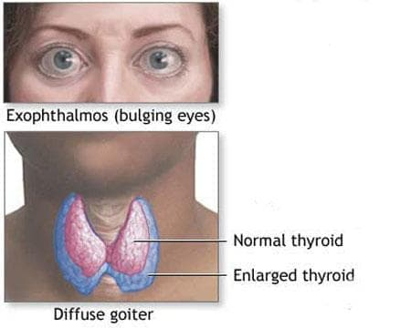 Екзофталм при нарушение на функцията на щитовидната жлеза (Е05.-ї) МКБ H06.2 - изображение