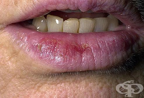 Болести на устните МКБ K13.0 - изображение