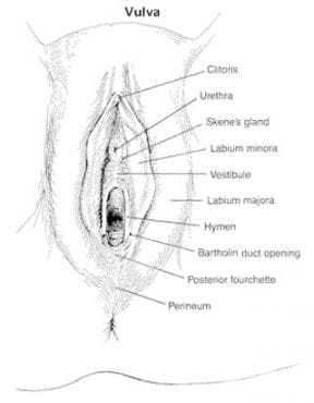 Други възпалителни болести  на влагалището и на вулвата МКБ N76 - изображение