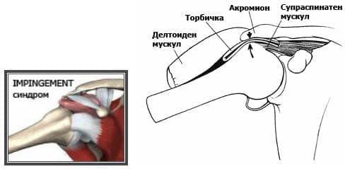 Увреждания на рамото МКБ M75 - изображение