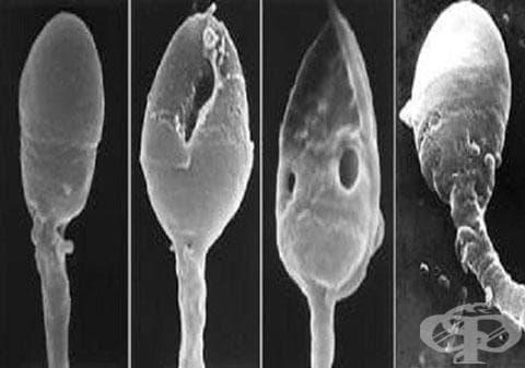 Безплодие при мъжа МКБ N46 - изображение