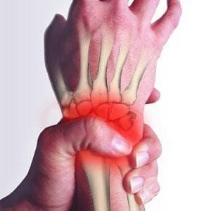 Счупване на ладиевидната кост на китката МКБ S62.0 - изображение