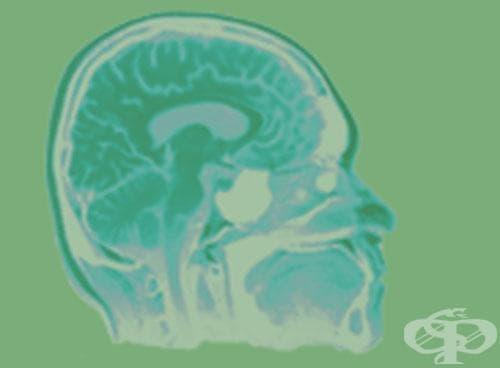 Вътремозъчен кръвоизлив МКБ I61 - изображение