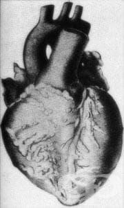Възлест полиартериит и наследствени състояния МКБ M30 - изображение