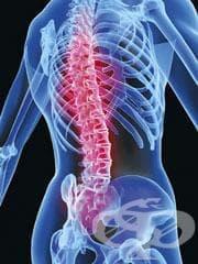 Остеопороза при болести, класифицирани другаде МКБ M82* - изображение