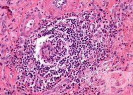 Саркоидоза на белите дробове МКБ D86.0 - изображение