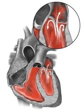 Вродени аномалии на сърдечната  преграда МКБ Q21 - изображение