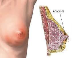 Абсцес на гърдата, свързан с раждането МКБ O91.1 - изображение