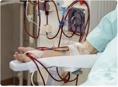 Терминален стадий на бъбречна болест МКБ N18.0 - изображение