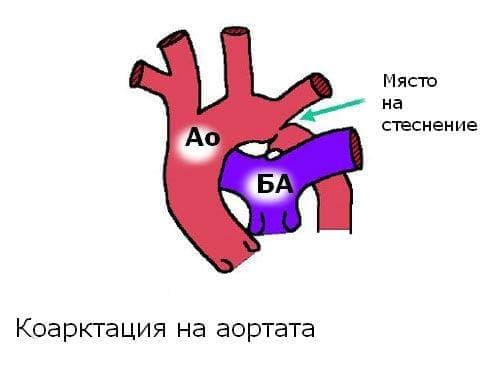 Коарктация на аортата МКБ Q25.1 - изображение