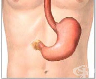 Други уточнени вродени аномалии на стомаха МКБ Q40.2 - изображение