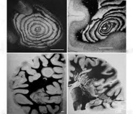 Концентрична склероза [Balo] МКБ G37.5 - изображение