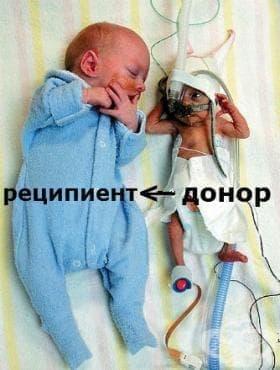 Фето-фетална трансфузия-донор МКБ P50.3 - изображение