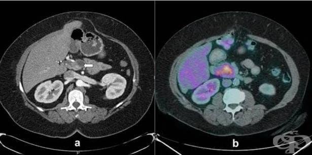 Карцином in situ на други уточнени храносмилателни органи МКБ D01.7 - изображение