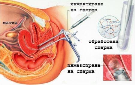 Характеристики сперматозоида и яйцеклетки