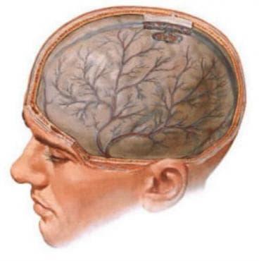 Токсична енцефалопатия МКБ G92 - изображение