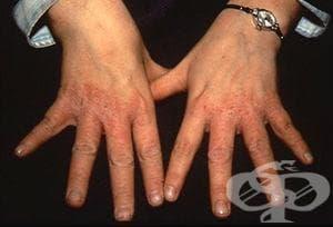 Иритативен контактен дерматит от неуточнена причина МКБ L24.9 - изображение