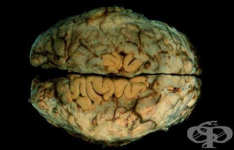Пневмококов менингит МКБ G00.1 - изображение