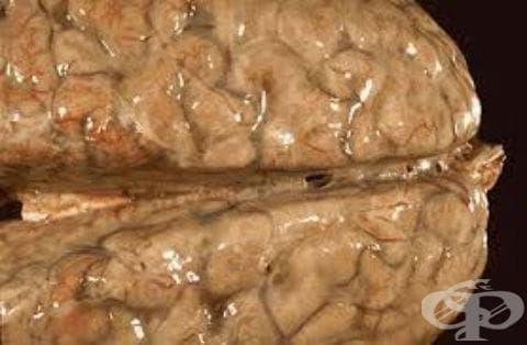 Стрептококов менингит МКБ G00.2 - изображение
