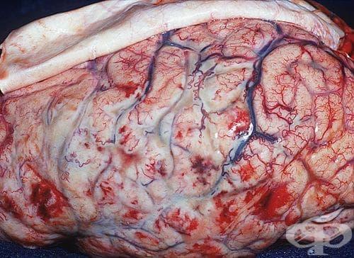 Бактериален менингит, неуточнен МКБ G00.9 - изображение