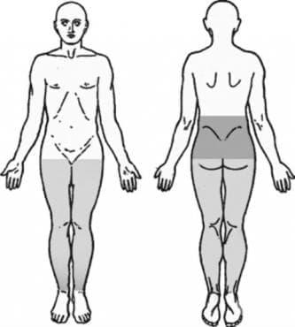 Тропическа спастична параплегия МКБ G04.1 - изображение