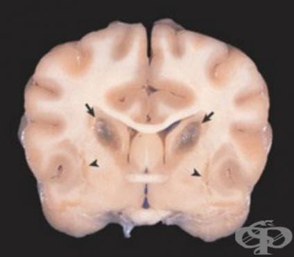 Стриатонигрална дегенерация МКБ G23.2 - изображение