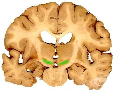Други дегенеративни болести  на базалните ганглии МКБ G23 - изображение