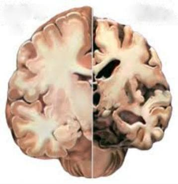 Болест на Алцхаймер, неуточнена МКБ G30.9 - изображение