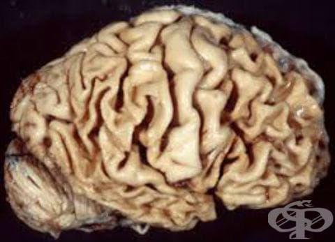 Ограничена атрофия на главния мозък МКБ G31.0 - изображение
