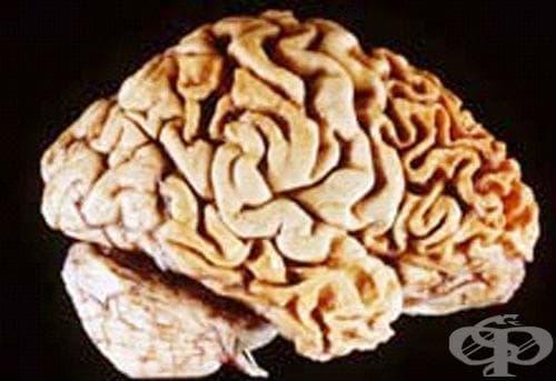 Други дегенеративни болести на централната нервна система МКБ G30-G32 - изображение