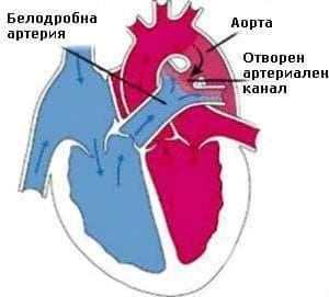 Персистираща фетална циркулация у новороденото МКБ P29.3 - изображение