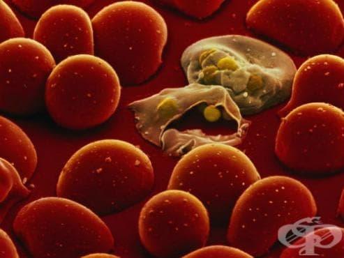 Друга вродена малария МКБ P37.4 - изображение